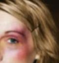 Domestic Violence face