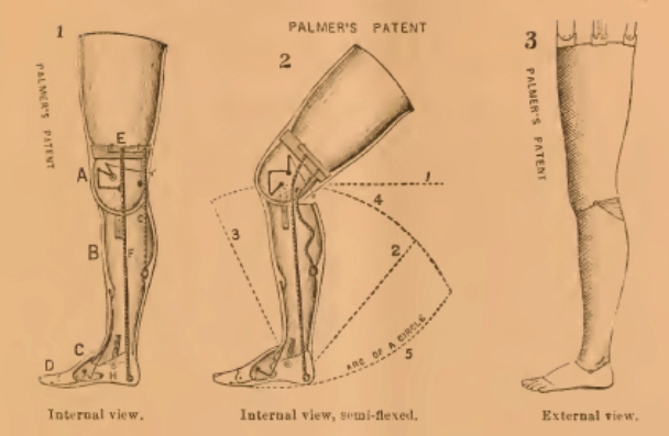 palmers-patent-for-artifical-leg-drawings