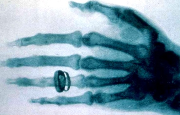 x-ray_by_wilhelm_rontgen_of_albert_von_kollikers_hand